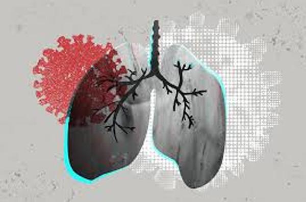 कोरोनाकाल में सभी को टीबी के बारे में इन 5 बातों का जानना है जरूरी